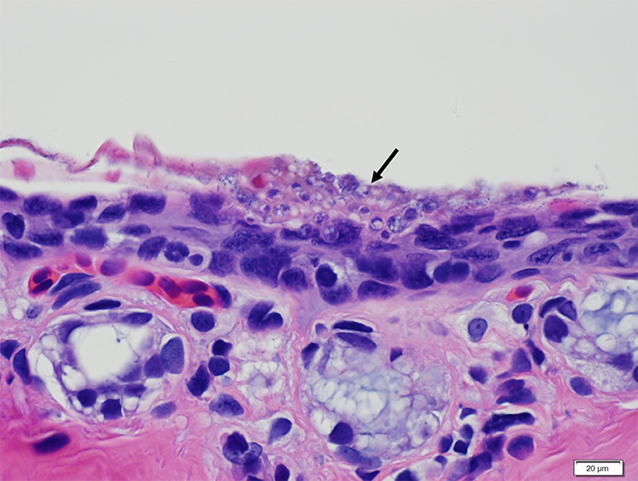 Histopathology confirms the presence of Bsal chytridiomycosis, shown with a black arrow.
