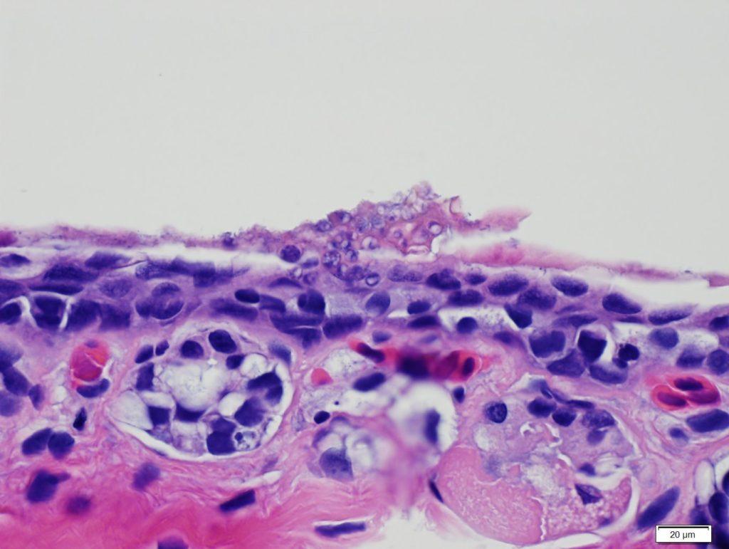 Histopathology of shallow lesion on a Blue Ridge two-lined salamander.