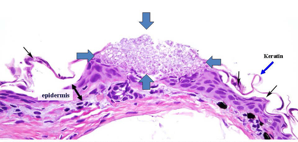 Histopathology of necrotic ulcerations from Bsal.